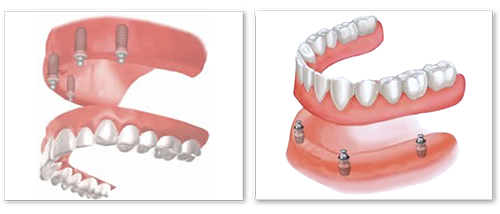 implant-supported-removable