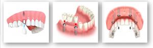 denture-process