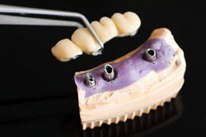 bridge implants