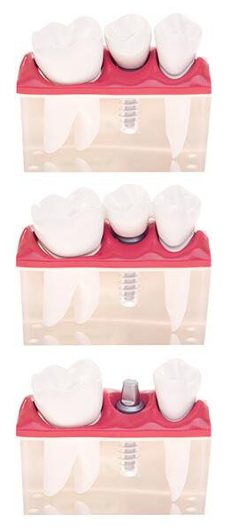 gum-grafting