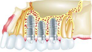 implants-dental