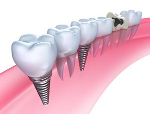 same-day-implants