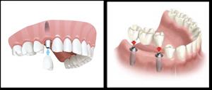 single-multiple-implants
